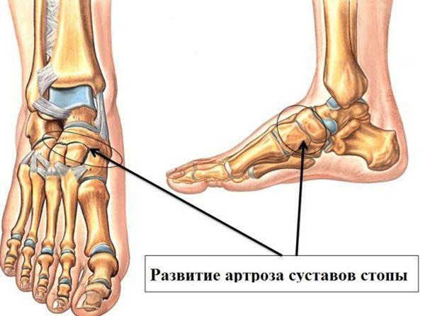 Артроз стопы 1 степени лечение