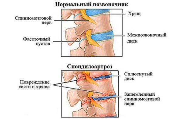 Боли в спине после алкогольной эпилепсии