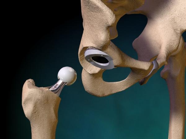 Каковы симптомы при вывихе тазобедренного эндопротеза