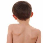 Сколиоз у детей: что делать и как лечить?