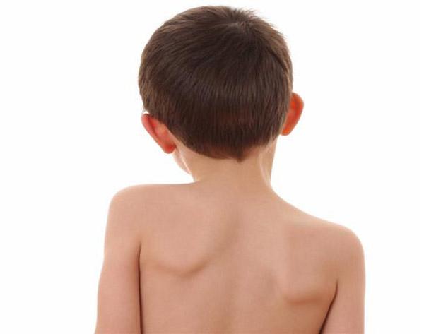 перелом голеностопного сустава без смещения