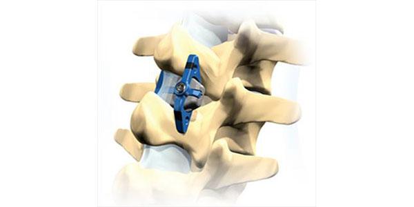 Хирургическая коррекция спондилоартроза