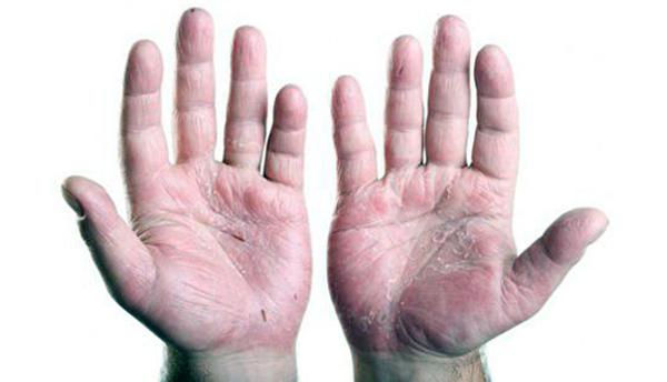 псориатический артрит на суставах рук