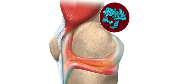 Развитие реактивного артрита