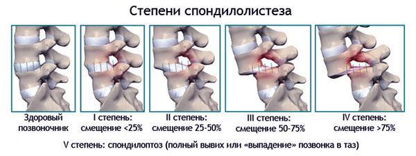 Степени спондилолистеза позвоночника