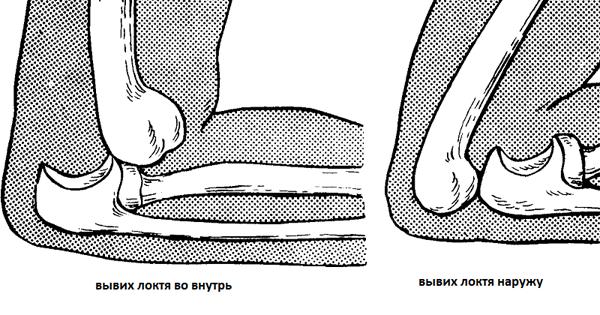Вывих локтевого сустава: первая помощь, лечение и восстановление