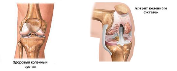 Разрушение коленного сустава при артрите