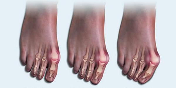 Артрит стопы основные симптомы и методы лечение заболевания