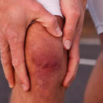 Что такое артрит коленного сустава и его симптомы