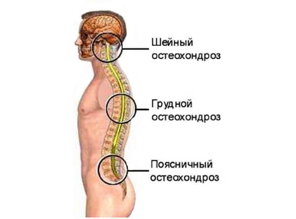 Классификация остеохондроза по отделам позвоночника