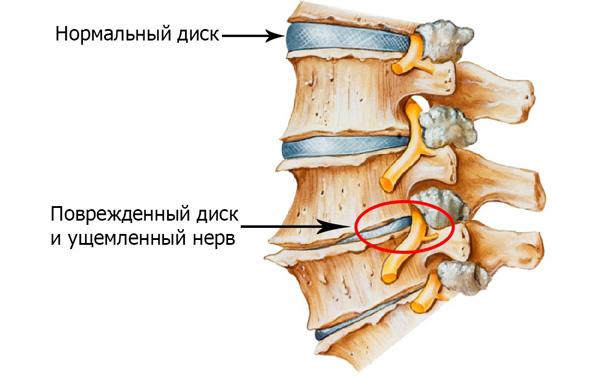 Повреждения позвоночника при остеохондрозе