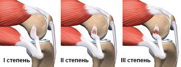 Растяжение сустава плеча лечение артроза крупных суставов апитерапией