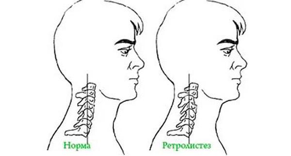 Ретролистез шейного отдела позвоночника