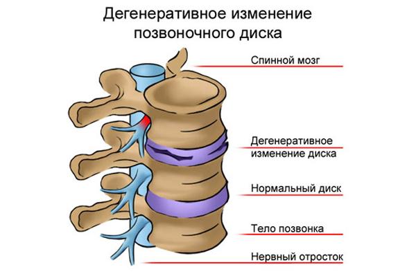 degenerativno-distroficheskie-izmeneniya-v-poyasnichno-kresttsovom-otdele