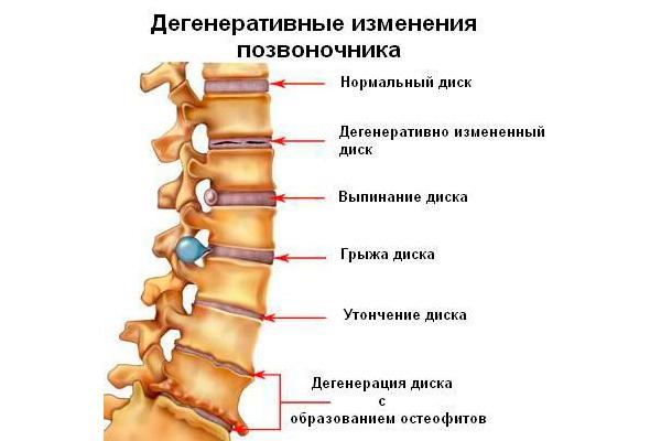 Скачать побеждаем остеохондроз! современные и народные способы лечения.