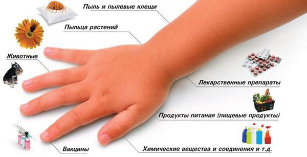 Аллергический артрит: причины аллергии