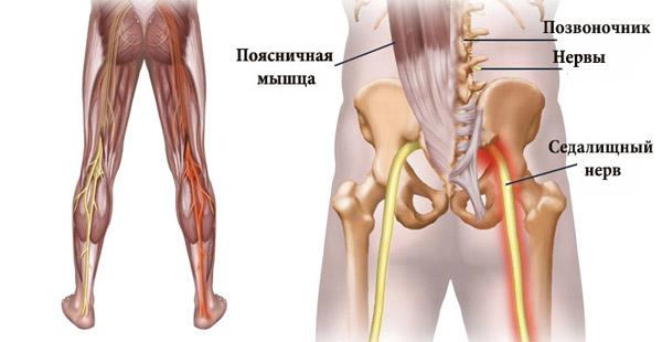 Воспаление седалищного нерва симптомы и лечение медикаментозное