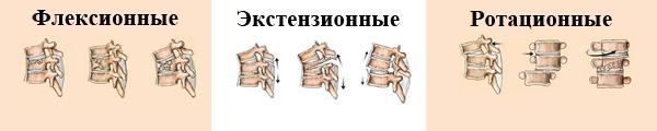 3 вида переломов позвоночника