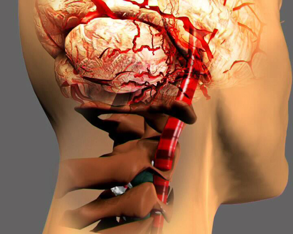 Синдром позвоночной артерии при всд