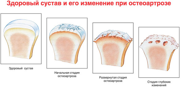 Деформирующий артроз лучезапястного сустава: симптомы и лечение