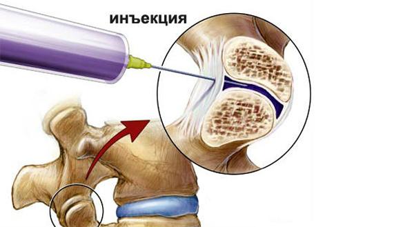 блокада тазобедренного сустава дипроспаном периартикулярная