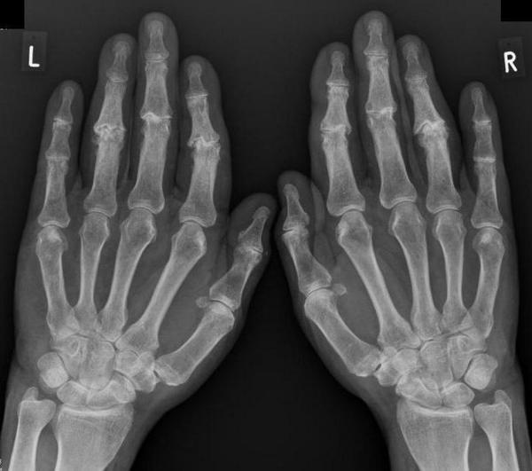 Артроз лучезапястного сустава руки фото болезни суставов у детей