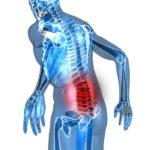 Дорсопатия поясничного отдела позвоночника: особенности заболевания
