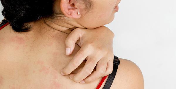 Аллергия от терафлекса
