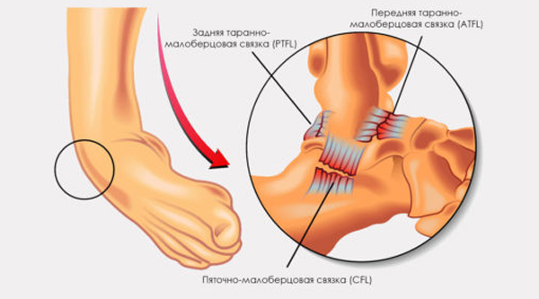 Голеностопный сустав разрывы связок форум мрт коленного сустава в переделкино
