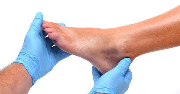 Разрыв сухожилия голеностопного сустава сколько заживает коленный сустав мениск