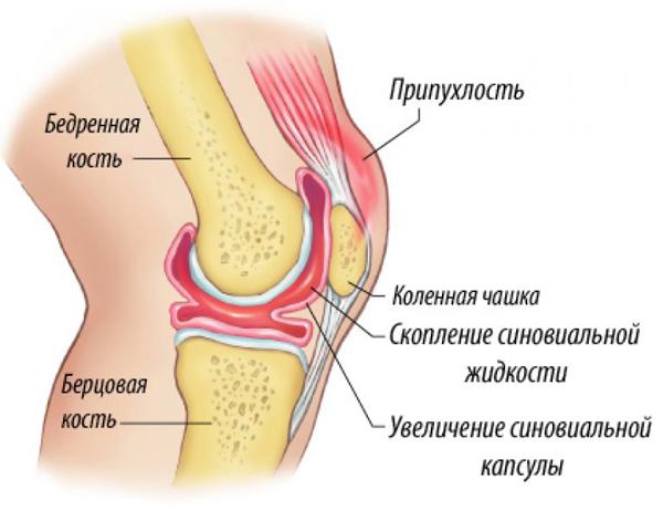 Куда девается жидкость из сустава болезнь суставов усабак