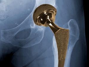 тотальное эндопротезирование тазобедренного сустава