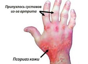 почему болит большой палец на руке