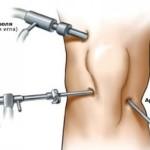 Как проходит операция при разрыве передней крестообразной связки коленного сустава
