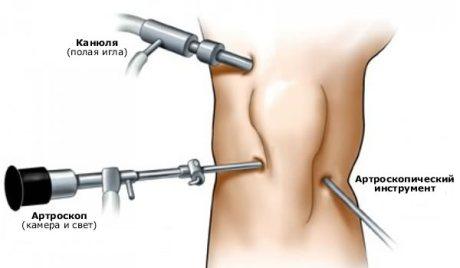операция на связки коленного сустава методом артроскопии