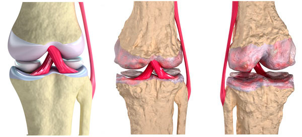 Щелчки в суставах могут говорить об артрозе