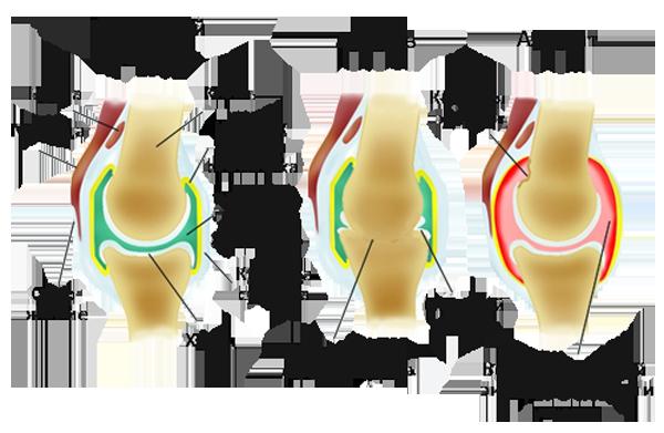 Отличие артроза от артрита