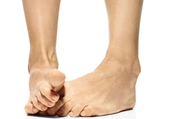 Артроз больших пальцев ног