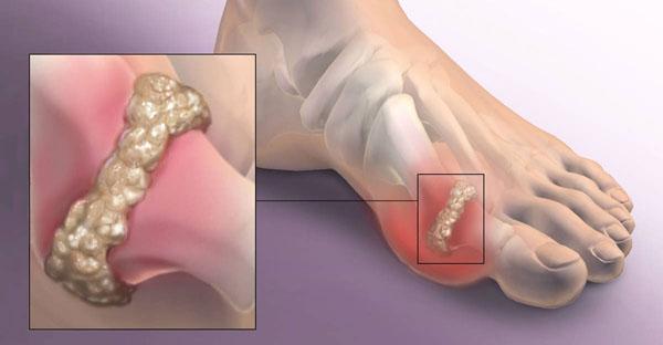 Пораженный артрозом сустав