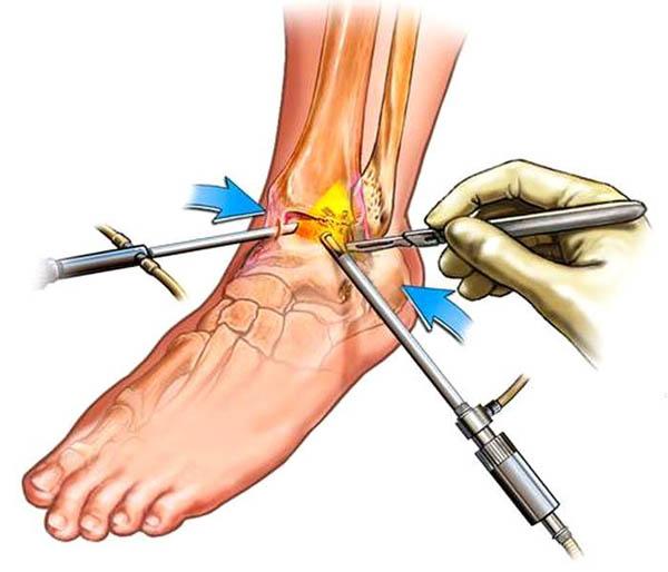Изображение - Лечение голеностопного сустава диклофенаком artroz-golenostopnogo-sustava-2-stepeni-lechenie
