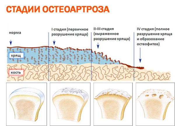 Изображение - Сужение суставной щели локтевого сустава artroz-loktevogo-sustava-2-stepeni