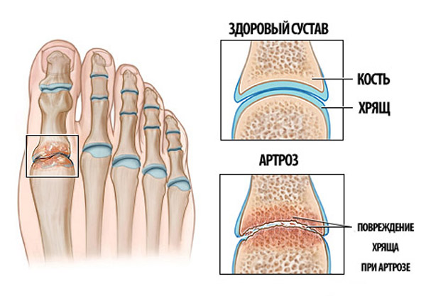 Артроз суставов стопы