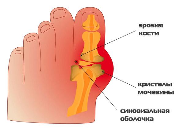 Подагра, боли в косточке большого пальца ноги