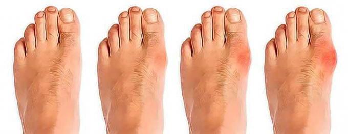 Развитие бурсита большого пальца стопы