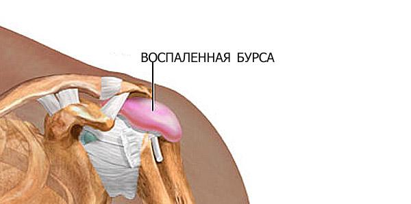 bursit-lechenie