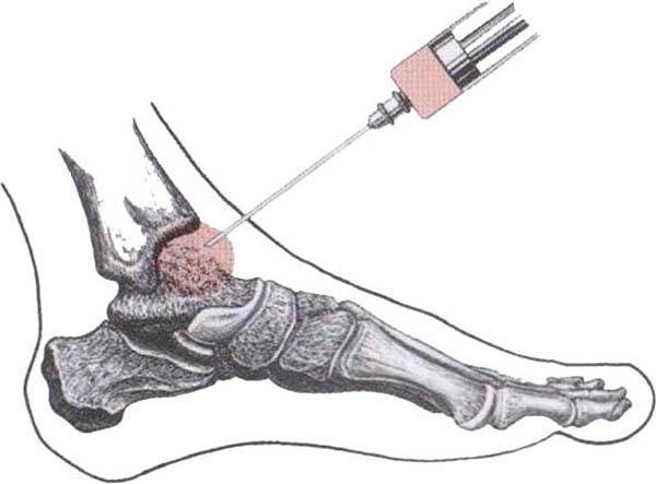 Изображение - Лечение голеностопного сустава диклофенаком chem-lechat-artroz-golenostopnogo-sustava