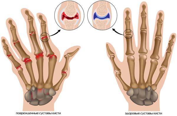 Видоизменения суставов при артрозе