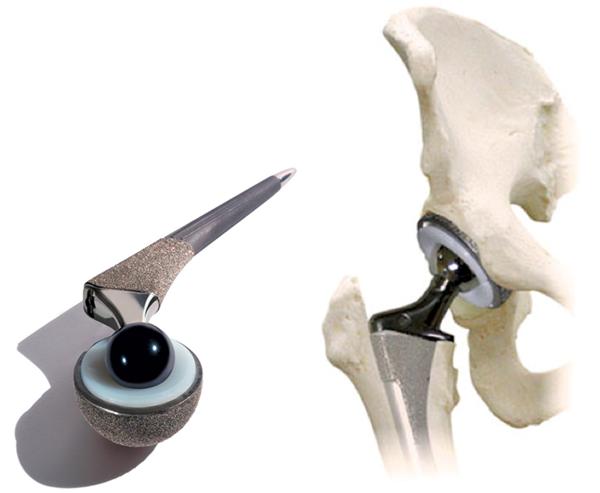 Изображение - Лечение коксартроза суставов endoprotez