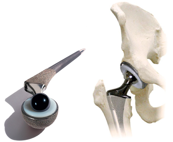 Изображение - Обострение коксартроза тазобедренного сустава лечение endoprotez