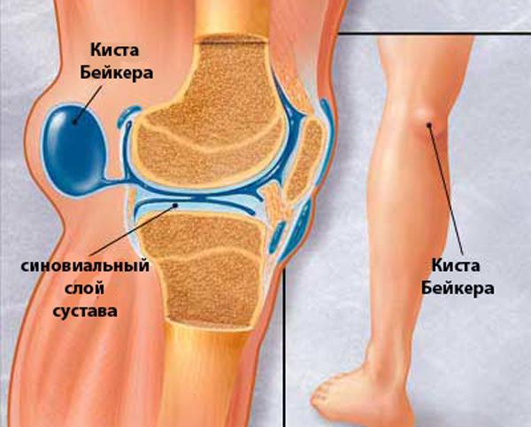 Изображение - Киста бейкера синовит коленного сустава kista-bejkera-kolennogo-sustava-lechenie-otzyvy